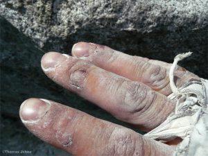 Zerschrammte Finger